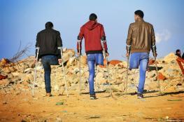 تقرير أممي: 1700 فلسطيني ينتظرون بتر أطرافهم في غزة