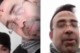 """قتلها ثم خرج في بث مباشر والدماء تسيل من يده.. لاجىء سوري في ألمانيا يقتل زوجته ويصف ما فعله بـ""""نهاية رجل شجاع"""""""