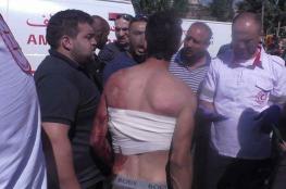 20 شاباً يهاجمون مواطنين داخل محل تجاري شمال الخليل
