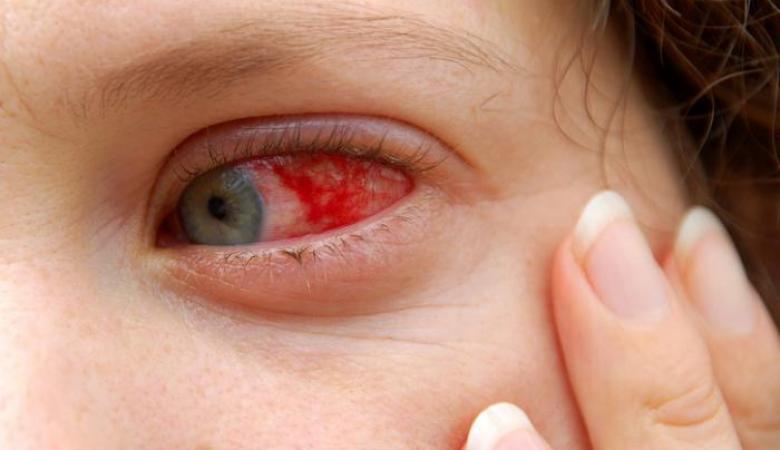 حتى العين قد تصاب بالإنفلونزا