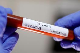 ما علاقة فصيلة الدم بالاصابة بفيروس كورونا؟
