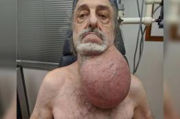 بحجم كرة القدم.. طبيب يستأصل ورما ضخما من رقبة رجل مسن