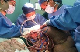 إنجاز طبي : إنقاذ مصاب بنوع نادر من مرض السرطان في الصين
