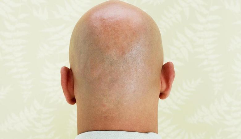 """هل """"زراعة الشعر"""" الحل الأمثل لمشكلة الصلع عند الرجال ؟"""