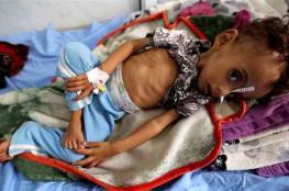الأمم المتحدة تحذر من فقدان جيل بأكمله في اليمن بسبب الجوع