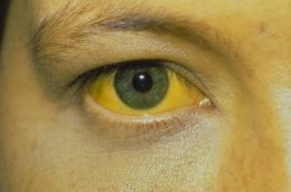 مرض غامض يصيب بالرعب .. نزيف من الأنف وإصفرار العين ثم الموت