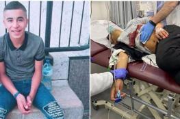 اصابة حرجة لطفل برصاص مستعربين بالقدس