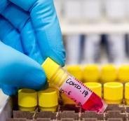 اصابات بفيروس كورونا في قلقيلية