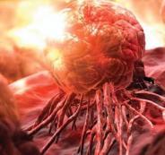 الاسبرين والسرطان