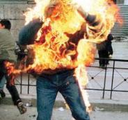 الشرطة تنقذ شاب احرق نفسه