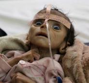 مجاعة في اليمن