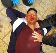 اصابة شاب بجراح بعد تعرضه للضرب على يد مستوطن