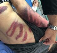 الاعتداء على محام في الضفة الغربية