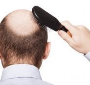 صلع الشعر