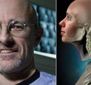 زراعة رأس جثة بشرية