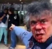 الجزائري رشيد نكاز يتعرض للضرب