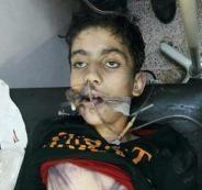 مقتل طفل سوري على يد خاله ضربا بسيخ حديدي حتى الموت