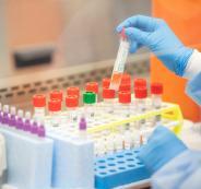 العلماء وانتاج لقاح ضد كوروونا
