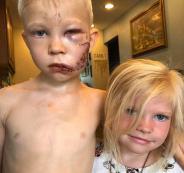 طفل تصدى لكلب لينقذ شقيقته