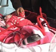 ازال دماغ زائد لرضيعة في غزة
