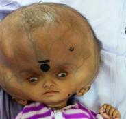 الطفل صاحب الجمجمة الأكبر في العالم
