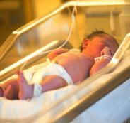 ولادة طفلة من 3 آباء
