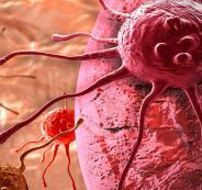 مرض السرطان
