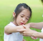 طبيب يكشف ورم ظهر على ذراع طفل ليظهر بأنه حيواناً بحرياً يعيش تحت جلده!