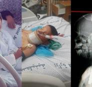 تفاصيل قصة الطفل الذي اخترق قضيب حديد رأسه دون أن يقتله في غزة-275x500