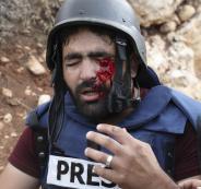 اصابة مصور صحفي في صوريف