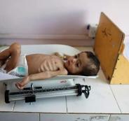 الاطفال في اليمن