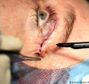 علاج جديد للعمى