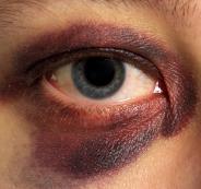 اصابة طفل في عينيه جراء الالعاب النارية