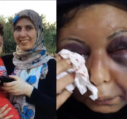 وجهها لا تكاد تعرفه من الضرب والتشويه الذي تعرضت له، وكأن أسداً انقض على #زهراء_صبحي وهشم جسدها الأنثوي الضعيف لتشكل قضية رأي عام هزت البحرين، بعد أن ضرب الزوج (مواطن بحريني)، زوجته وأم أبنائه الخمسة (زهراء صبحي). فكدمات وجروح