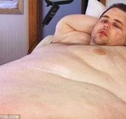 شخص يزن 380 كيلو غرام