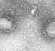 فيروس كورونا وانواع