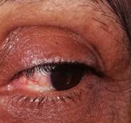 رجل يقتلع عيني زوجته في الاردن
