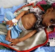 الامم المتحدة والجوع في اليمن