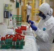 تسجيل اصابة بفيروس كورورنا في جنين