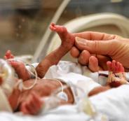 الولادة المبكرة والاجهاض