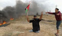 شهيد مبتورة قدميه في غزة