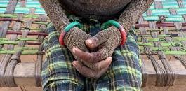 مرض نادر يحول بشرة طفلة الى حجارة