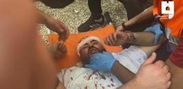 الاصابات في المسجد الاقصى