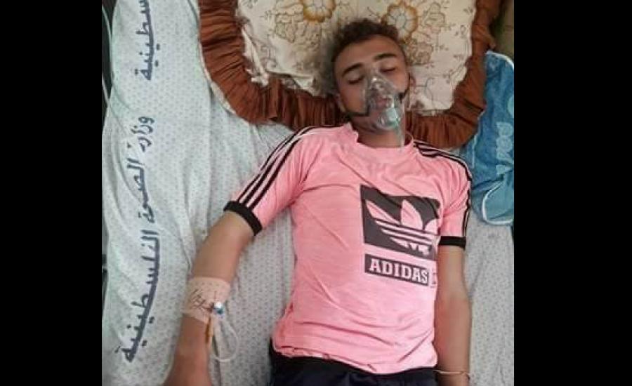 غاز مجهول اطلقه الاحتلال يسبب تشنجات واضرابات عصبية لشاب منذ 6 أيام