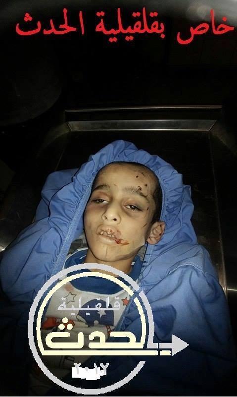 """18+ ...صور الطفل الفلسطيني """"ايهم"""" وهو جثة هامدة بعد جريمة قتله من زوجة ابيه  18+ ...صور الطفل الفلسطيني """"ايهم"""" وهو جثة هامدة بعد جريمة قتله من زوجة ابيه"""